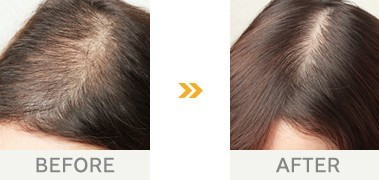 女性 の 薄毛 を 確実 に 治す 方法