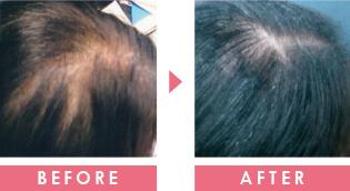 女性の薄毛 育毛事例