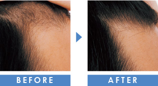 額の薄毛 育毛事例
