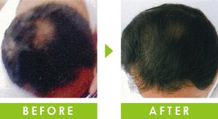 頭頂部の薄毛 育毛事例