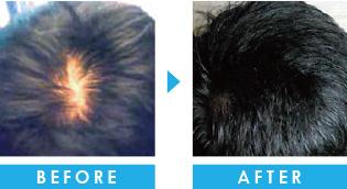 10代の薄毛 育毛事例