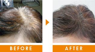 60代の薄毛 育毛事例