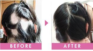 円形脱毛 改善事例